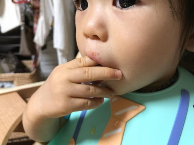 子どもが口内炎で痛そう。原因は?